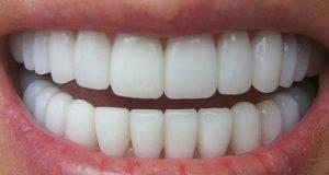 Blanqueamiento de dientes